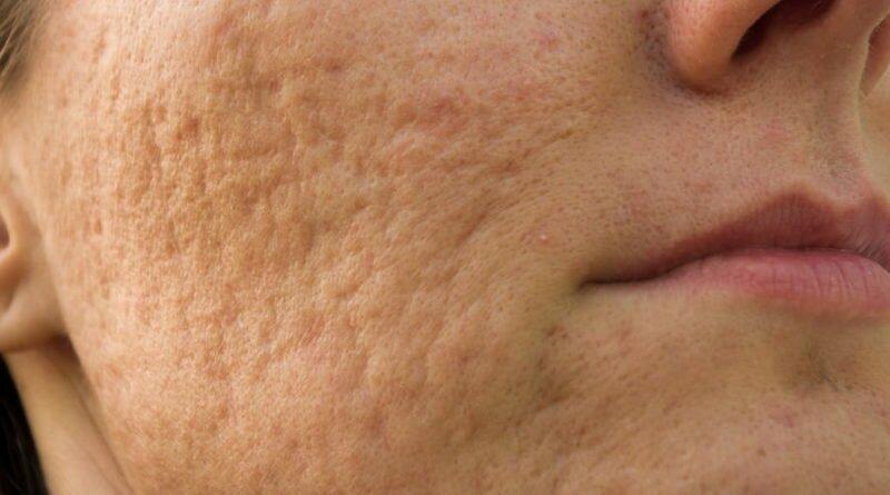 шрамы от угревой сыпи