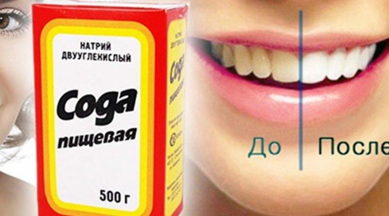 чистить зубы содой плюсы и минусы